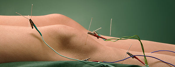Acupuncture with Electrical Stimulation